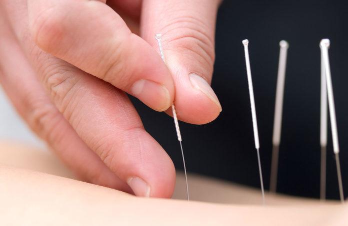 Samen Zwanger - Acupunctuur