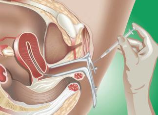 Samen Zwanger - Intra-uteriene inseminatie